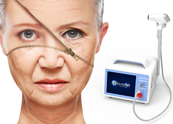Rf Ultrasonic Laser Wrinkle Removal 14 fungsi mesin wajah 2 In 1 Mesin RF Max 80W